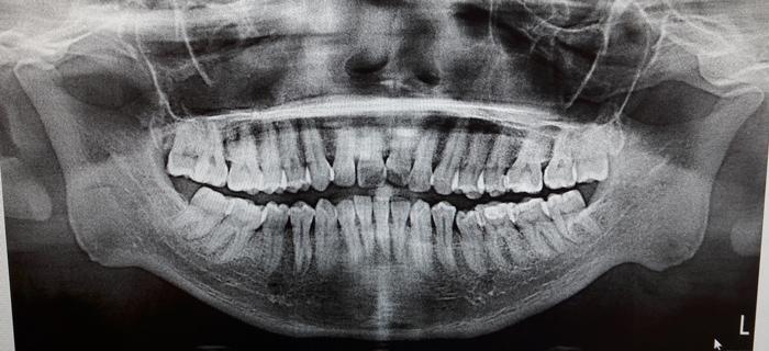 20160720_205856-kakoun-chamberland-orthodontsite-a-quebec