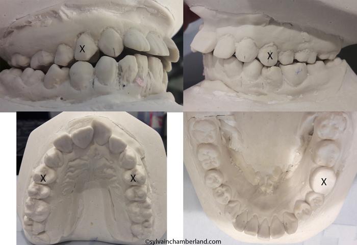 kakoun-suggestion-de-tx-chamberland-orthodontiste-a-quebec