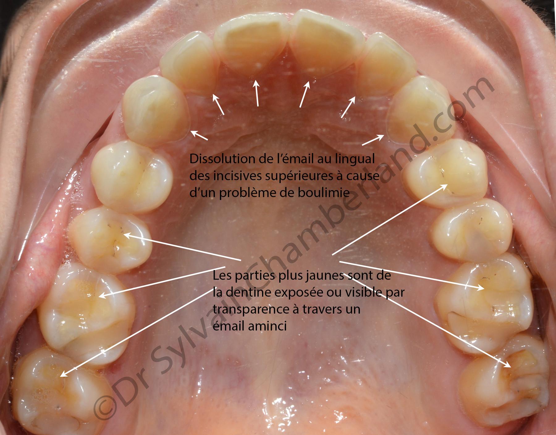 Boulimie et érosion de l'émail dentaire.