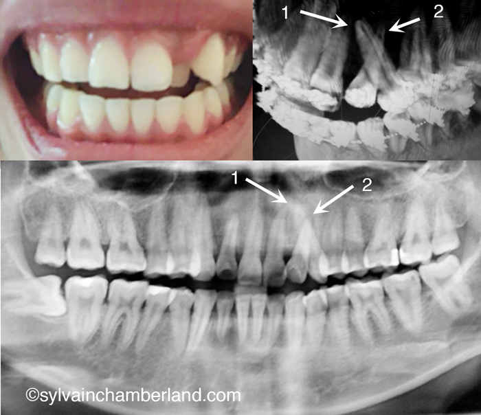 Impacted Teeth Canines - Dr Sylvain Chamberland Orthodontiste