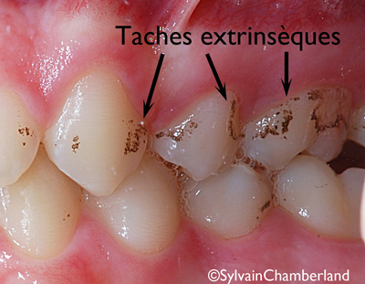 Taches-extrinseques-OlTr-Bo-iog-29082011-orthodontiste Chamberland Quebec