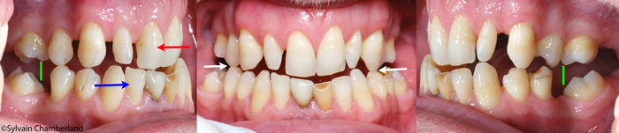Mandibular advancement device - Dr Sylvain Chamberland Orthodontiste