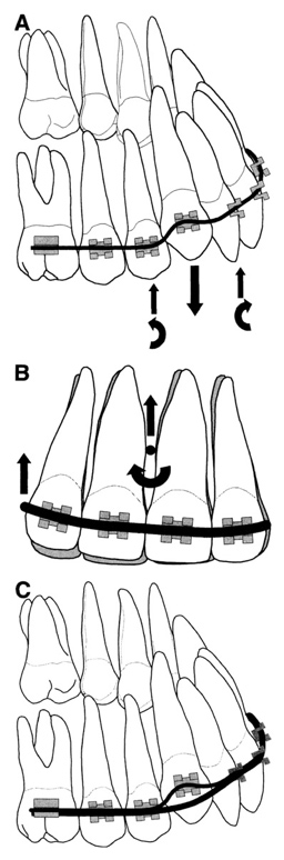 Side-effect-of-straight-wire-mechanics-to-high-canine-Chamberland-Orthodontiste-a-Quebec