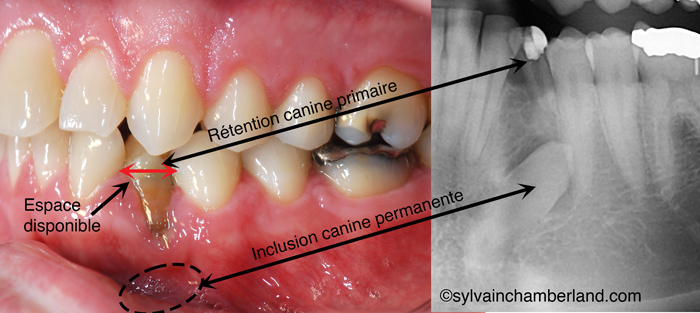 MaBer-canine-mandibulaire-incluseChamberland-Orthodontiste-a-Quebec