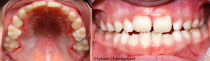 Post expansion-Dr Chamberland orthodontiste à Québec