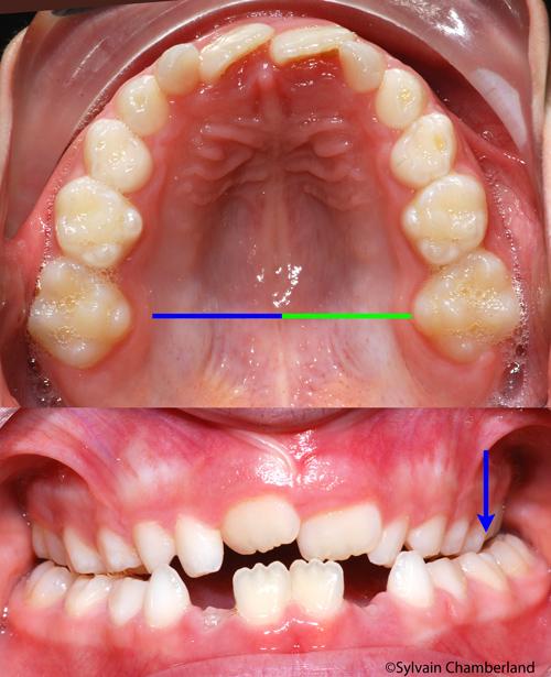 Expansion asymétrique-Dr Chamberland orthodontiste à Québec