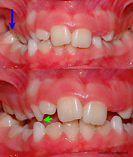 Glissement fonctionnel-Dr Chamberland orthodontiste à Québec