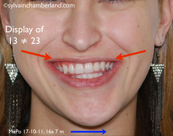 Facial-asymmetry-_-Cant-of-the-occlusal-plane-Chamberland-Orthodontiste-Quebec