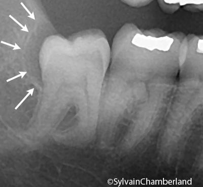 Wisdom teeth - Dr Sylvain Chamberland Orthodontiste