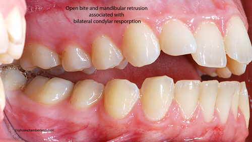 Open-bite-and-mandibular-retrusion--associated-with--bilateral-condylar-resporption-ArLa-Chamberland-orthodontiste-quebec