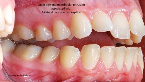 Open-bite-and-mandibular-retrusion--associated-with--bilateral-condylar-resporption-ArLa-Chamberland-orthodontiste-quebec