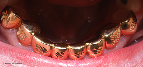 Grillz occlusal view JoDr-Dr Chamberland orthodontist in Quebec City