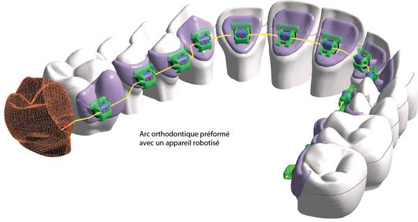 HARMONY arc orthodontique préformé par un appareil robotisé-Dr Chamberland orthodontiste à Québec