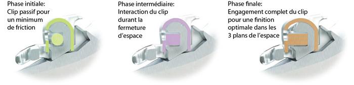 HARMONY phase initiale intermédiaire et finale-Dr Chamberland orthodontiste à Québec