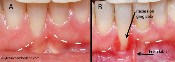 LiOu-Gencive-attachee-(keratinisee)-inadequate_recession-gingivale-orthodontiste-chamberland-quebec