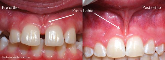 Diastème interincisif et frein labial