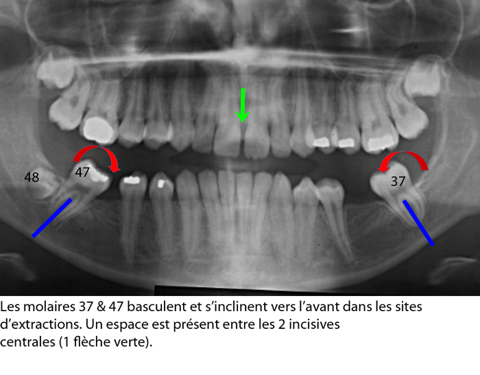 Mutilation-dentaire_affaissement-de-locclusion_collapse-de-la-dimension-verticale_orthodontiste-Chamberland-Quebec-2