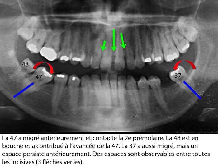 Mutilation dentaire affaissement de l'occlusion collapse de la dimension verticale-Dr Chamberland orthodontiste à Québec