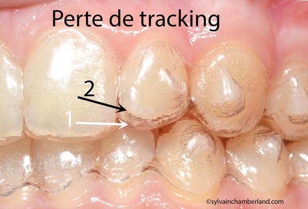 Perte-de-tracking-FeMeLabre-CHamberland-Orthodontiste-a-Quebec-iof-30-08-16