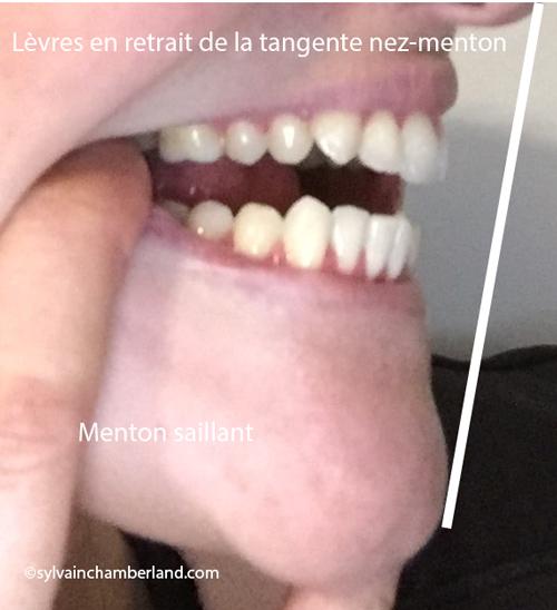 Profil-de-Lyne-Chamberland-Orthodontiste-a-Quebec