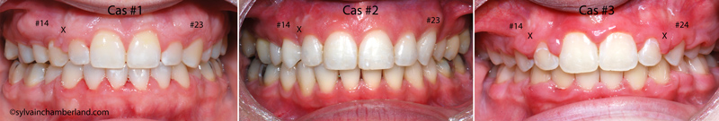 occlusion-without-canines-Chamberland-orthodontist-Quebec