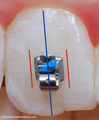 Bracket SPEED™ sur incisive centrale supérieure-Dr Chamberland orthodontiste à Québec