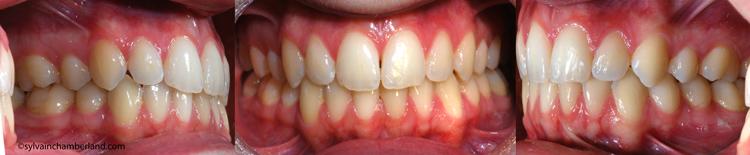 Asymétrie camouflage dentaire-Dr Chamberland orthodontiste à Québec