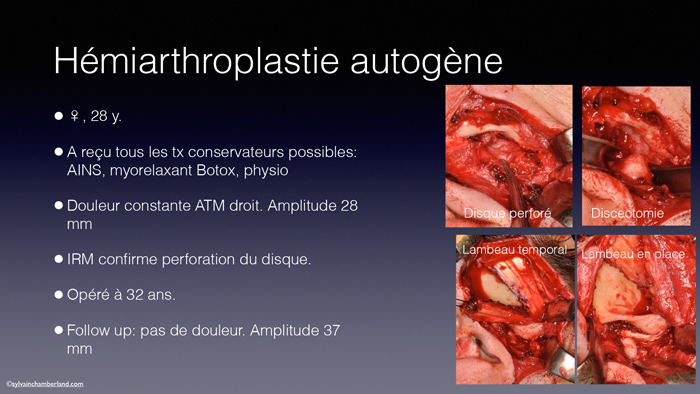 Hemiarthroplastie2-Chamberland-Orthodontiste-a-Quebec