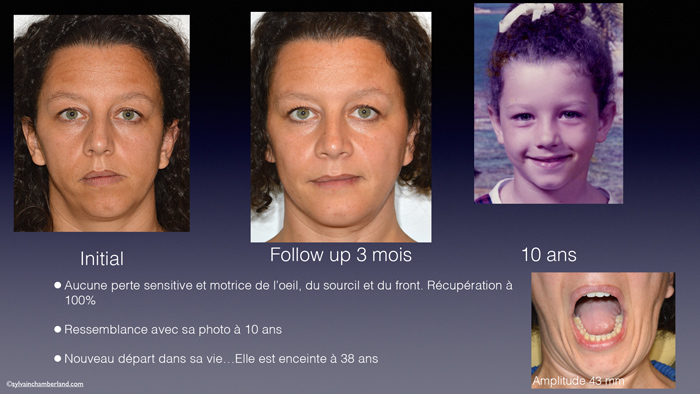 Prothese-totale-de-ATM-Elodie-Chamberland-Orthodontiste-a-Quebec