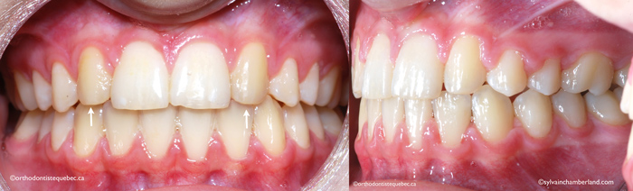 Substitution latérale canine et relation molaire classe II-Dr Chamberland orthodontiste à Québec