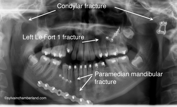 Cli-Pier-An-P_03162009_121200-Chamberland-Orthodontiste-a-Quebec-fracture-condylienne-bilaterale-1