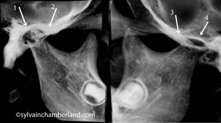 Condyle-droit-et-gauche-fracture-condylienne-gauche-Chamberland-orthodontiste-Quebec