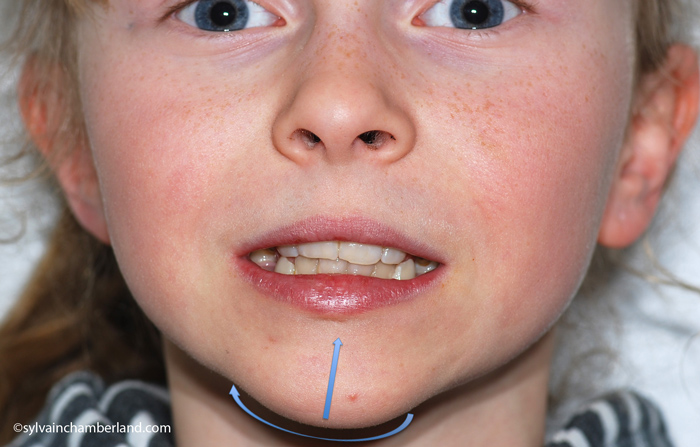 JuLe-asymetrie-faciale-droite-Chamberland-orthodontiste-Quebec-23-04-2012