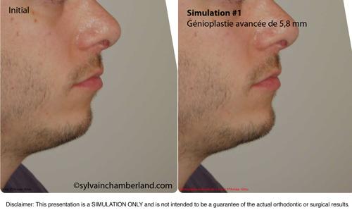 Simulation-1-génioplastie-avancement-de-6-mm-orthodontiste-Chamberland-Québec