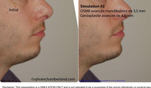 Simulation-2-OSMB-avancemenent-mandibulaire-et-génioplastie