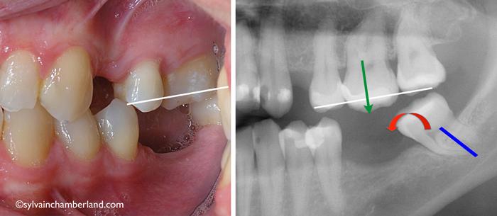 Dental-mutilation-molar-egression-orthodontist-Chamberland-Quebec