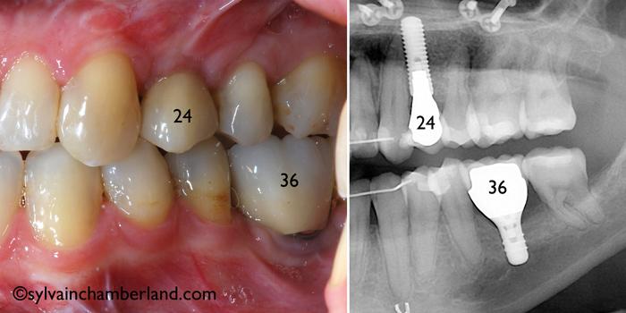 Restoration-on-implant-orthodontist-Chamberland-Quebec