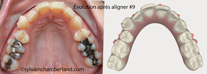 Evolution after aligner #9. Upper occlusal view.