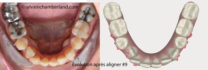 Evolution after aligner #9. Lower occlusal view.