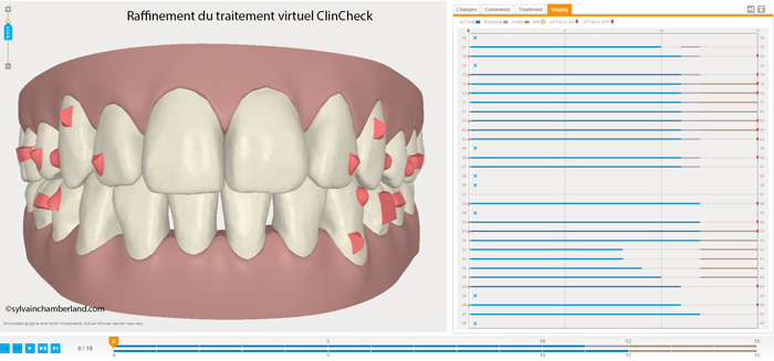 New sequence of virtual treatment recommended by refinement of the ClinCheck®