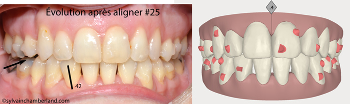 Evolution after aligner #25. Intraoral front view.