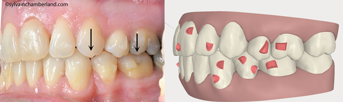 Evolution after aligner #25. Left intraoral view.