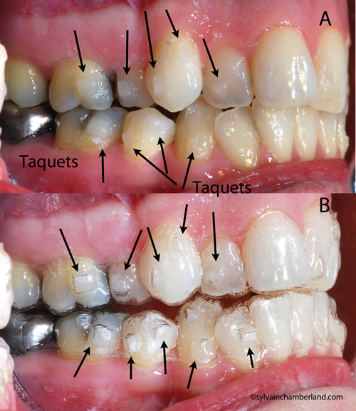 Invisalign® trays covering the attachments