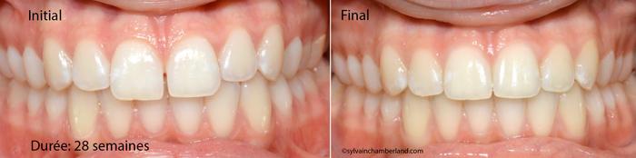 Diasteme-interincisif-superieur-LeaD-L-Chamberland-Orthodontiste-a-Quebec