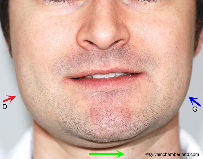 Asymétrie faciale vers la gauche hypercondylie droite-Dr Chamberland orthodontiste à Québec