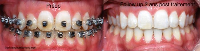 Béance antérieure MaJeBe-Dr Chamberland orthodontiste à Québec