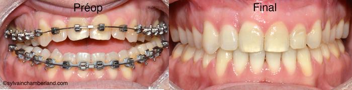 Béance antérieure PaBi-Dr Chamberland orthodontiste à Québec