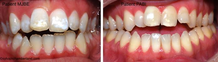 Béance antérieure PaBi et mJ Bea-Dr Chamberland orthodontiste à Québec