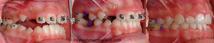 Extraction 1res molaires béance antérieure AnPiLe-Dr Chamberland orthodontiste à Québec