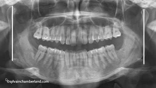 Gurgulu pano-Dr Chamberland orthodontiste à Québec